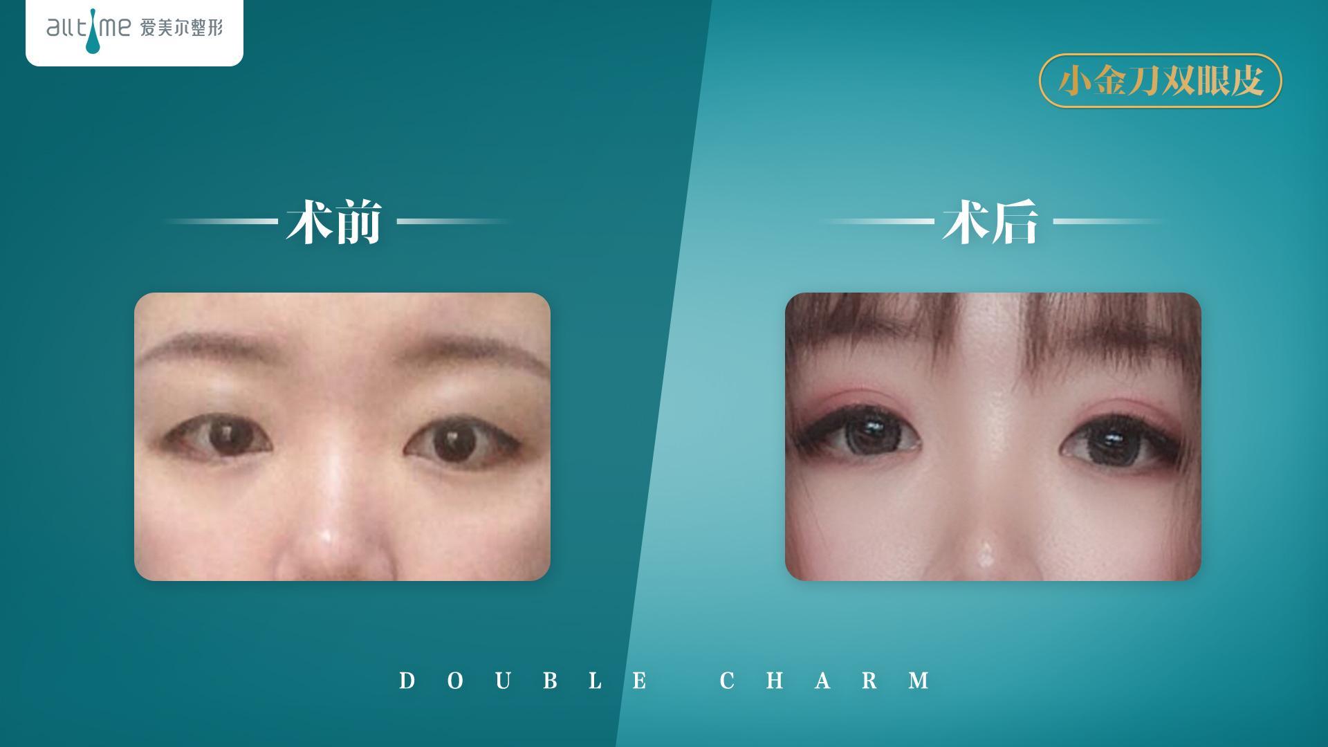福州爱美尔鼻修复+双眼皮案例分享,我又重新找回自信了