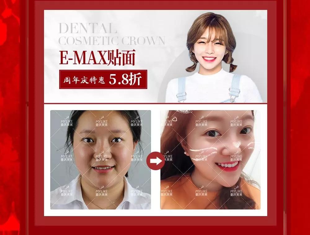 E-MAX贴面,周年庆特惠5折